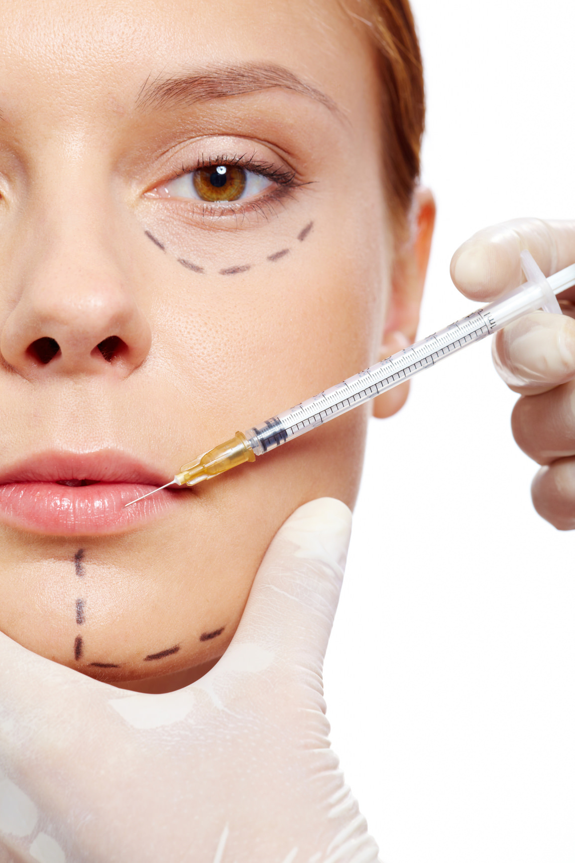 Injection of collagen